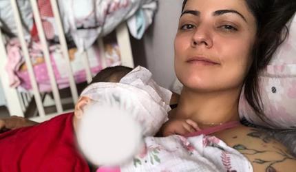 Американка показала дочь после первого этапа удаления родимого пятна